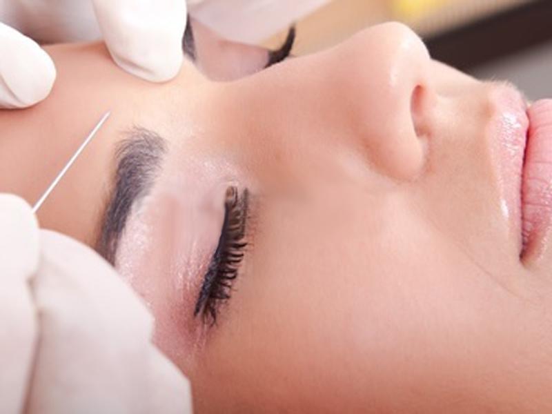 Мезотерапия кожи. Проблемы, эффект и возможные осложнения